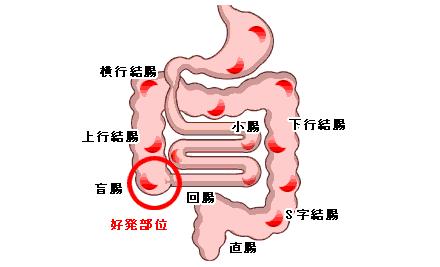 大腸にできる潰瘍;クローン病とは