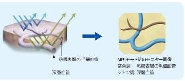 最新鋭の経鼻内視鏡(NBI)を搭載