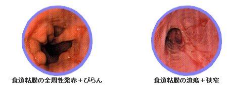 逆流性食道炎の診断は内視鏡検査で