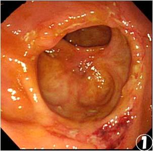 盲腸にできる潰瘍;腸結核とは