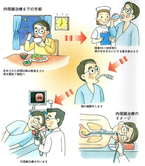 胃ポリープの治療は内視鏡切除