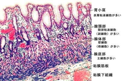胃がんの組織型による悪性度の違いは?